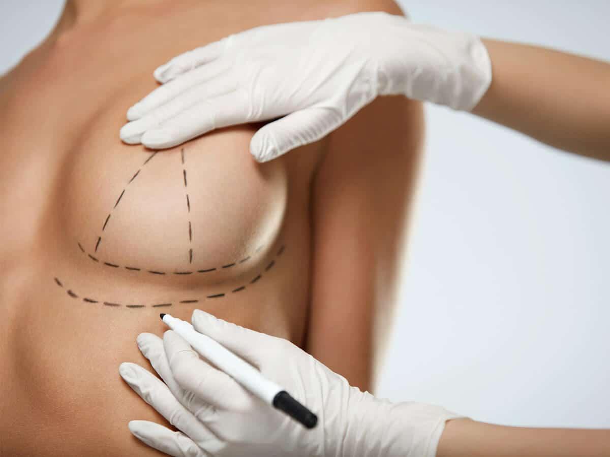 Breast Lift (Mastopexia) Surgery in Turkey