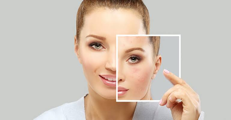 J Plasma Skin Renewal