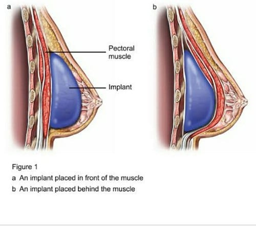 What is the role of breast augmentation in Turkey?